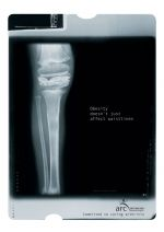 Arthritis Research Campaign - x-ray