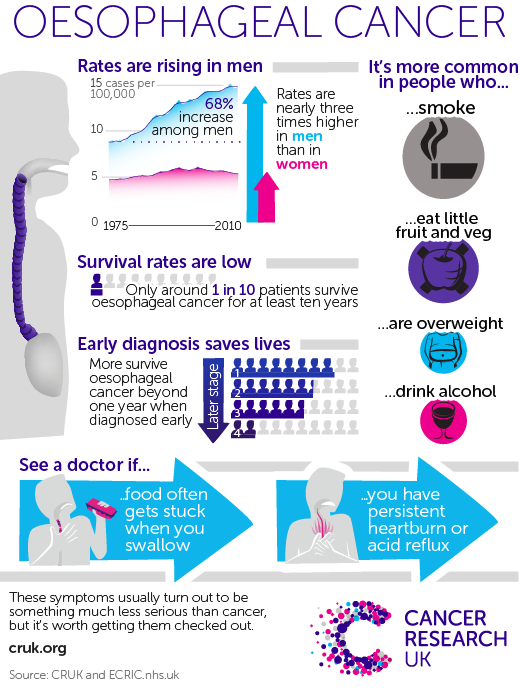cancer research uk oesophageal cancer infographic
