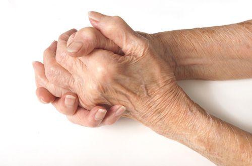 AbbVie: UK patients want better arthritis care