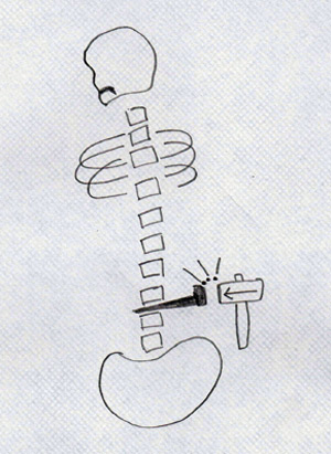 Patient art herniated spinal disc