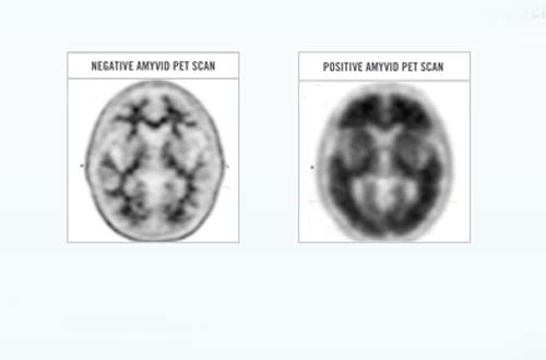 Lilly Amyvid amyloid scan