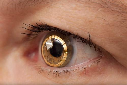 Sensimed contact lens sensor