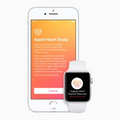 Apple Watch shows promise in heart study, but doctors sceptical