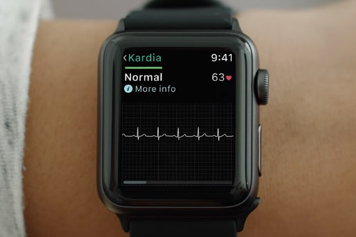 Apple Watch Kardia Band