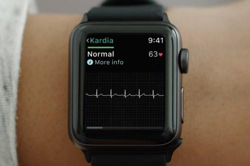 Apple Watch Kardia Band